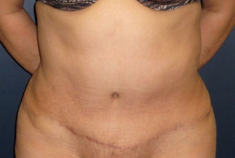 45-54 year old woman treated with Liposuction after 3377010