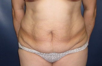 45-54 year old woman treated with Liposuction before 3377010