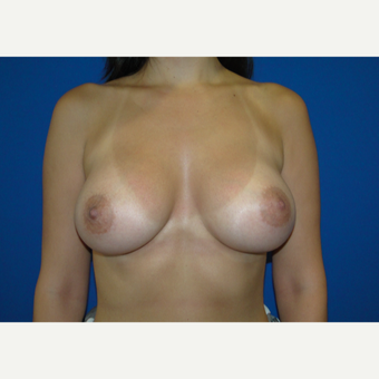 Breast Augmentation with 350 cc Silicone Implants after 3666100