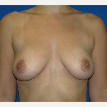 Breast Augmentation with 350 cc Silicone Implants before 3666100