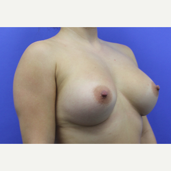 25-34 year old woman treated with Breast Augmentation after 3738721