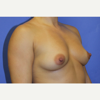 25-34 year old woman treated with Breast Augmentation before 3738721