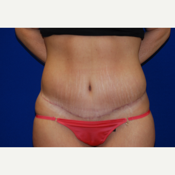 35-44 year old woman treated with Tummy Tuck after 3747423