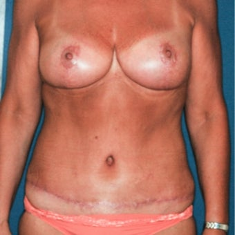 45-54 year old woman treated with Mommy Makeover after 2297097