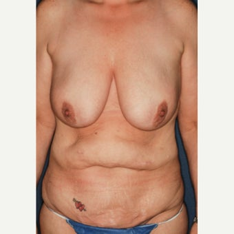 45-54 year old woman treated with Mommy Makeover before 2297097