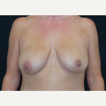 45-54 year old woman treated with Breast Lift with Implants before 3305957