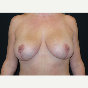 45-54 year old woman treated with Breast Lift with Implants after 3305957