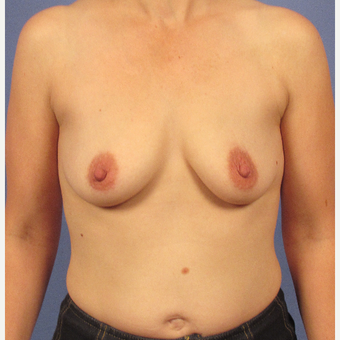 35-44 year old woman treated with Breast Augmentation before 3106746