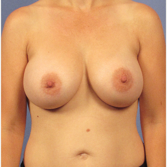 35-44 year old woman treated with Breast Augmentation after 3106746
