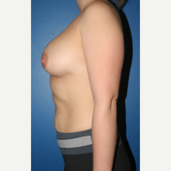 25-34 year old woman treated with Breast Augmentation after 3789191