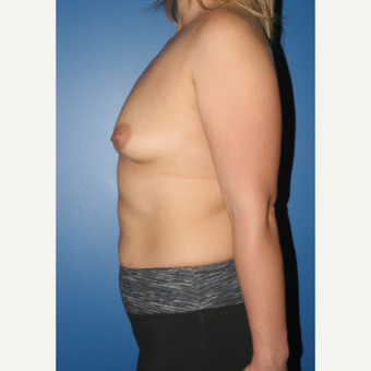 25-34 year old woman treated with Breast Augmentation before 3789191