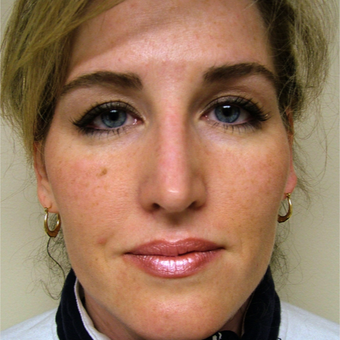 35-44 year old woman treated with Rhinoplasty after 3320865