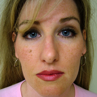 35-44 year old woman treated with Rhinoplasty before 3320865