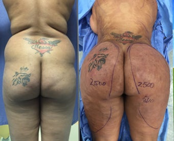 25-34 year old woman treated with Brazilian Butt Lift before 2623032