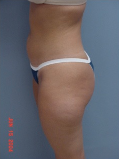 Vaser Liposuction before 1409610