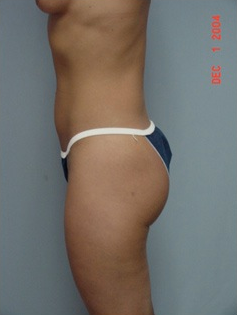 Vaser Liposuction after 1409610