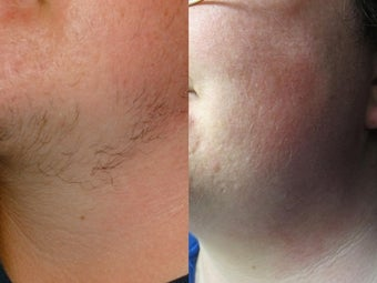 29 year old femal with excess facial hair presented for laser hair removal