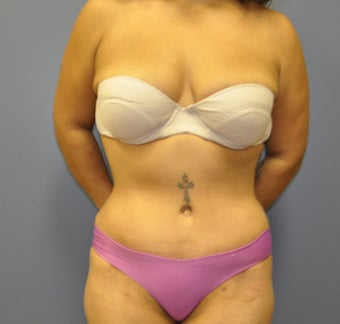 Hourglass Tummy Tuck by Dr. Wilberto Cortes after 472640