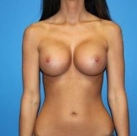 25-34 year old woman treated with Breast Implants after 1793371