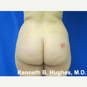 Liposuction before 3001134