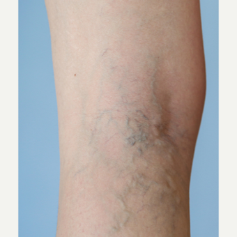 45-54 year old woman treated with Sclerotherapy before 3499255