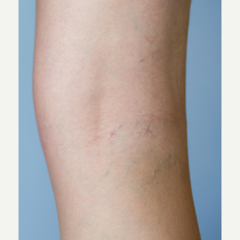 45-54 year old woman treated with Sclerotherapy after 3499255