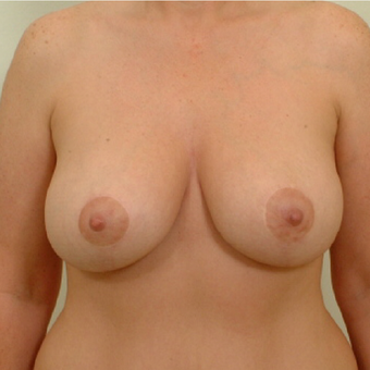 25-34 year old woman treated with Breast Lift after 3523947
