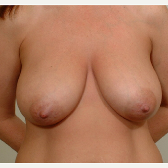 25-34 year old woman treated with Breast Lift before 3523947