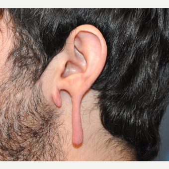 "Stretched (""gauged"") and Torn Earlobe Repair before 3732904"