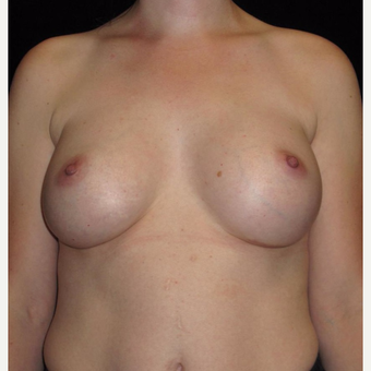 33 year old woman treated with Breast Augmentation after 3093670