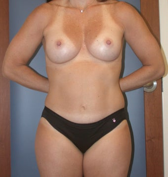 42 year old Mom of 3 Mommy Makeover after 1363165