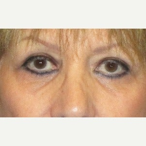 55-64 year old woman treated with Eye Bags Treatment (Lower Blepharoplasty) and Upper Blepharoplasty after 2241528