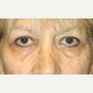 55-64 year old woman treated with Eye Bags Treatment (Lower Blepharoplasty) and Upper Blepharoplasty before 2241528