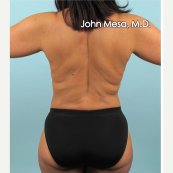35-44 year old woman treated with Liposuction of flanks, back and sacrum