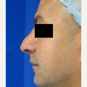 Rhinoplasty before 2994567