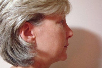52 Year Old Female MACS Short Scar Mini Facelift & Upper Blepharoplasty Patient 1208883