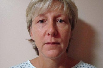 52 Year Old Female MACS Short Scar Mini Facelift & Upper Blepharoplasty Patient before 1208883