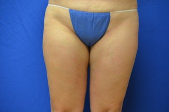 38 y/o female treated with SmartLipo to inner thighs before 1158363