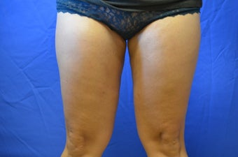 38 y/o female treated with SmartLipo to inner thighs after 1158363