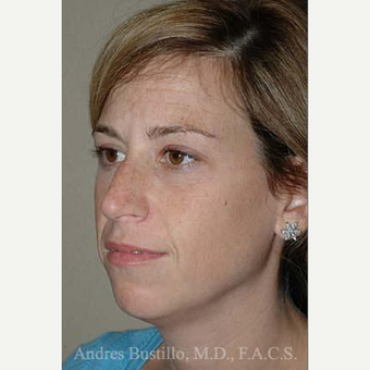 35 year old woman treated with Rhinoplasty before 3462371