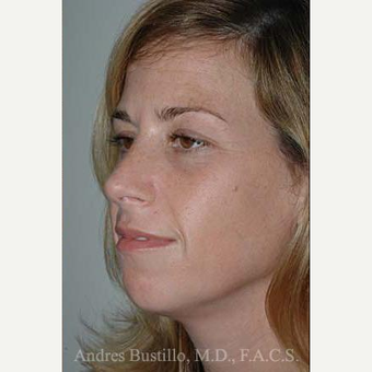 35 year old woman treated with Rhinoplasty after 3462371