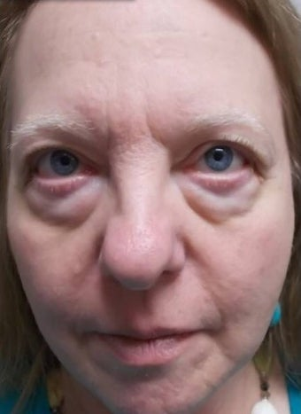 59 year old woman treated with Eyelid Surgery before 3227754