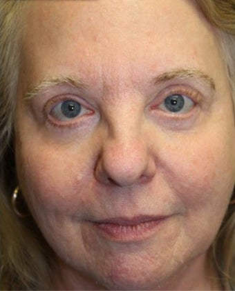 59 year old woman treated with Eyelid Surgery after 3227754