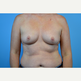 35-44 year old woman treated with Breast Augmentation before 3644230