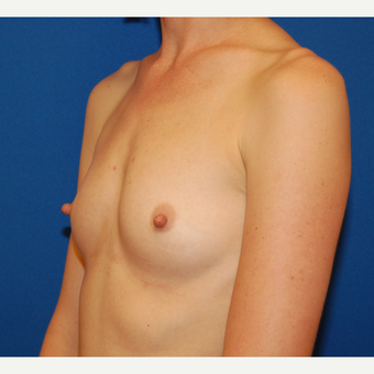 35-44 year old woman treated with Breast Implants before 3610217