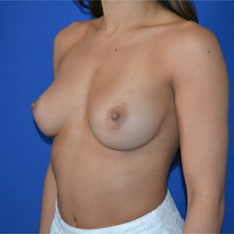 25-34 year old woman treated with Breast Augmentation before 3094101