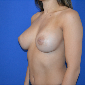25-34 year old woman treated with Breast Augmentation after 3094101