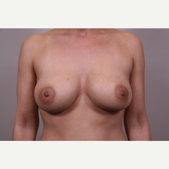 35-44 year old woman treated with Breast Augmentation after 3768673