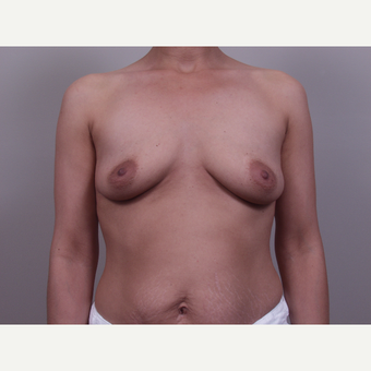 35-44 year old woman treated with Breast Augmentation before 3768673