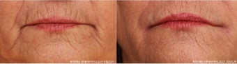 A woman in her 60s has smoker's lines treated with Belotero before 1035716